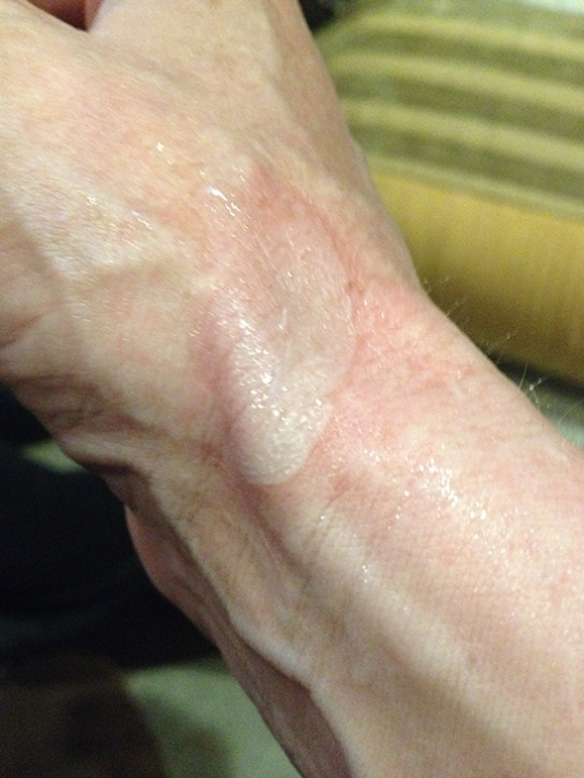 an image of a wrist with a burn on it