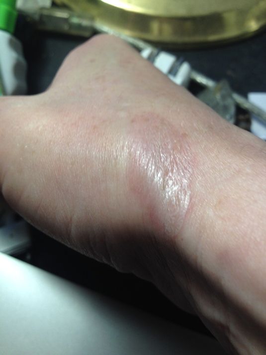 an image of a human wrist that is mine with a burn from the oven element